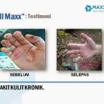 Testimoni CellMaxx Penyakit Kulit Kronik