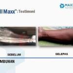 Testimoni CellMaxx Pesakit Ketumbuhan