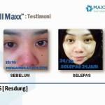 Testimoni CellMaxx Pesakit Resdung