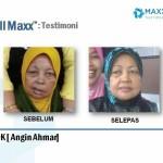 Testimoni CellMaxx Pesakit Strok