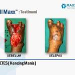 Testimoni Cellmax Pesakit Kencing Manis